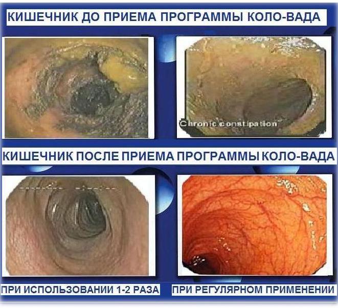 очистка кишечника от паразитов